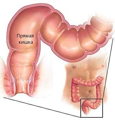 Что входит в органы малого таза у женщин — изучаем анатомию. КТ органов малого таза