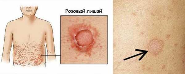 Потемнела кожа в паху у женщин